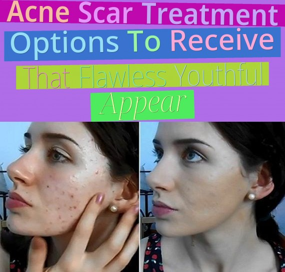 Acne Scar Treatment Options To Receive That Flawless, Youthful Appear