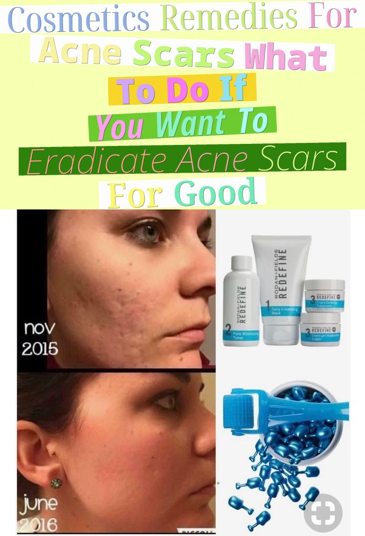 Cosmetics Remedies For Acne Scars - What To Do If You Want To Eradicate Acne Scars For Good