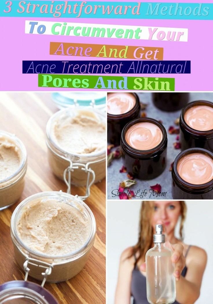 3 Straightforward Methods To Circumvent Your Acne And Get Acne Treatment All-natural Pores And Skin